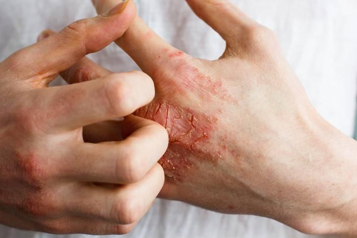 Vous avez de l eczema , du sporiasis ?   Ça vous gratte énormément ? Des fois mê…